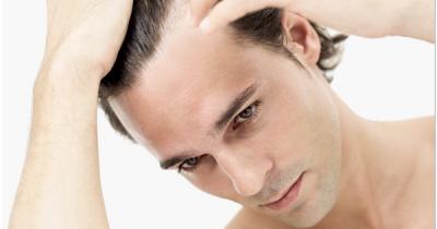 Cara Mengatasi Rambut Rontok Pada Pria